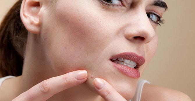 ¿Qué es el acné fúngico y cómo podés tratarlo?