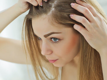 3 señales de alerta de un cuero cabelludo sensible