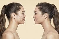 Conocé el mejor make up para la piel propensa al acné