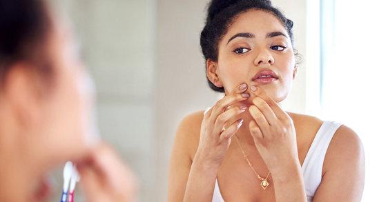 ¿Cómo cuidar la piel cuando sufrís acné hormonal?