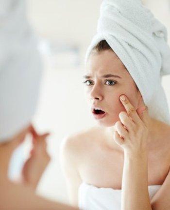 El acné y el estilo de vida, una relación íntima